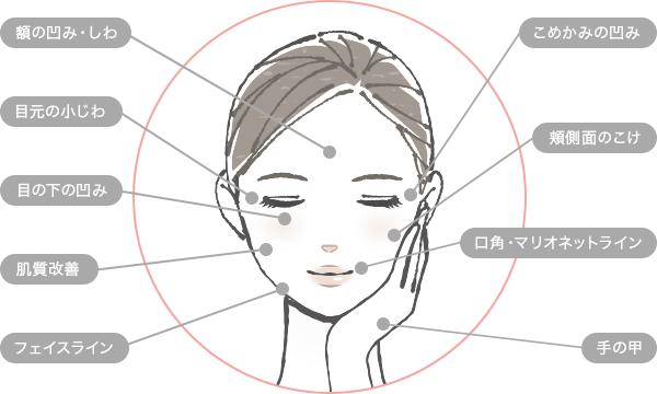 Uses for Ellanse - 治療できる部位